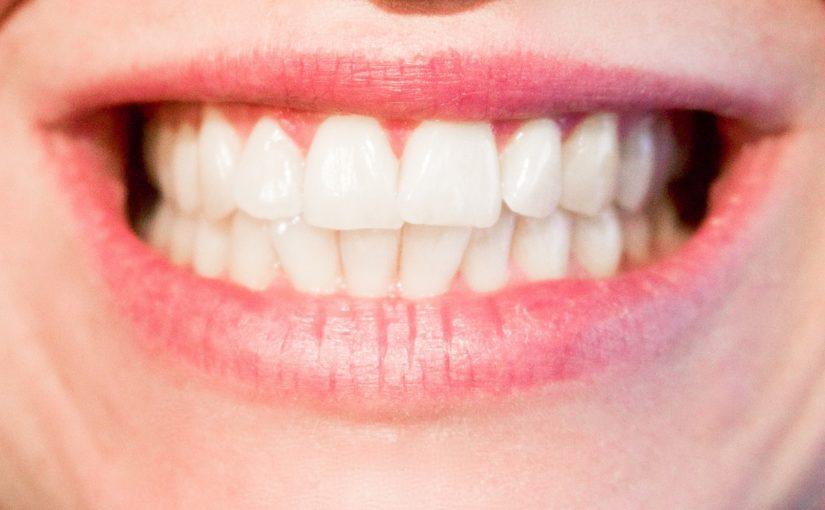 Obecna technologia wykorzystywana w salonach stomatologii estetycznej może sprawić, że odzyskamy śliczny uśmiech.